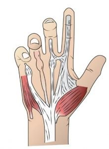 An Exploration of Hand Surgery in PCS