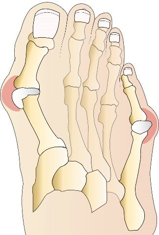 CPT Coding For Hammer Toes and Bunionectomies