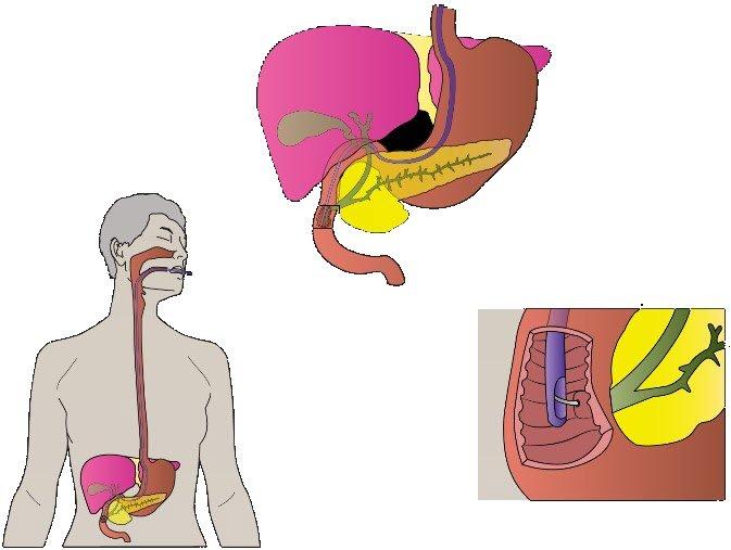 CPT Coding for GI Endoscopy Procedures