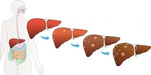 Liver Disease and Treatment in ICD-10