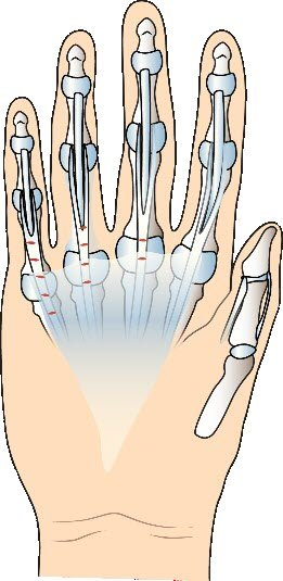 An Exploration of Hand Surgery in CPT