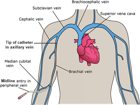 Can Midline Catheters Placed By Vascular Nurses Be Reported